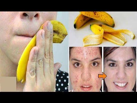 Découvrez pourquoi vous ne devriez plus jeter les bananes trop mûres: Celles ci peuvent faire des merveilles à votre visage.