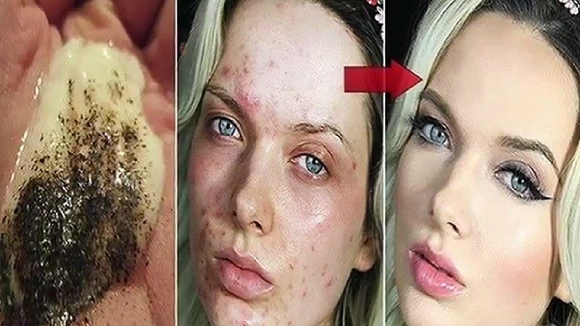 Mélangez ces 2 ingrédients et appliquez les sur votre visage: Quelques minutes plus tard, les résultats sont ÉTONNANTS !!