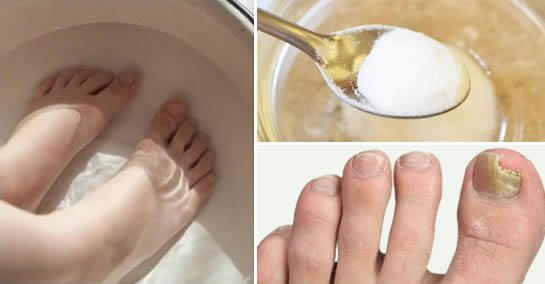 Comment se débarrasser des champignons des pieds avec du bicarbonate de soude