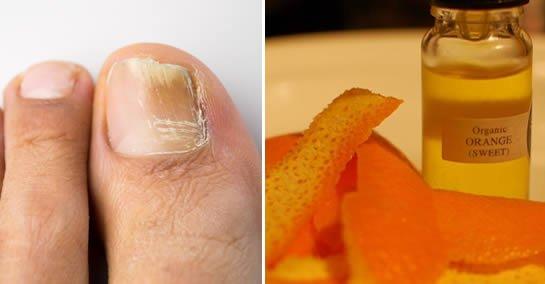 Comment se débarrasser définitivement de la mycose des ongles avec de l'huile d'orange