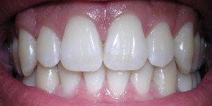 3 méthodes naturelles pour blanchir vos dents