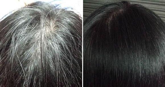 3 astuces naturelles pour uniformiser et adoucir les cheveux gris