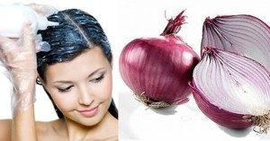 Comment faire repousser les cheveux en quelques jours avec de l'oignon
