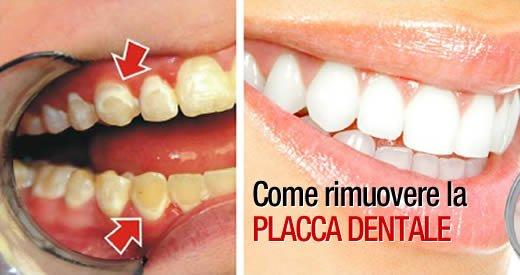 Comment se débarrasser de la plaque dentaire pour toujours et naturellement