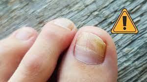 Mycose des ongles : comment s'en débarrasser pour toujours et naturellement