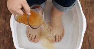 Vinaigre : voici comment l'utiliser pour faire disparaître à jamais les mycoses des pieds