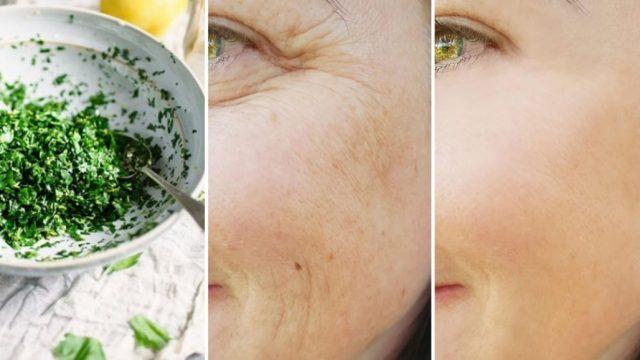 Rides, imperfections cutanées et acné : comment s'en débarrasser avec un masque au persil
