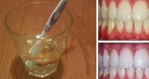 Comment blanchir vos dents avec du vinaigre de cidre de pomme